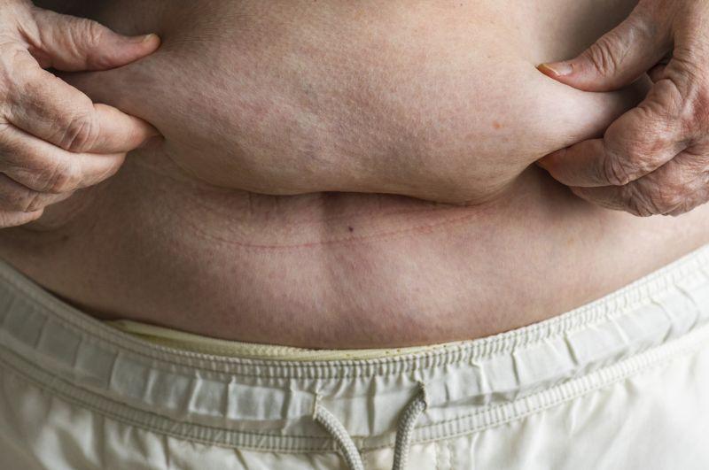 Brzuch otyłego mężczyny